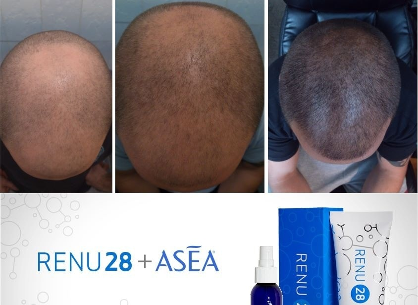 ASEA business opportunity