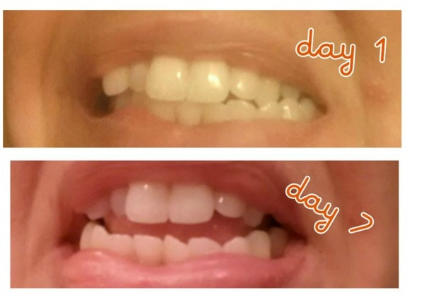 Smile Brilliant Led Teeth Whitening System Review And